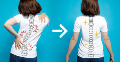 体の歪みの改善の画像